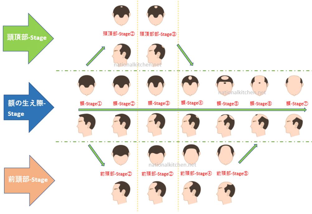 AGA(男性型脱毛症)のタイプ別 (頭の状態)