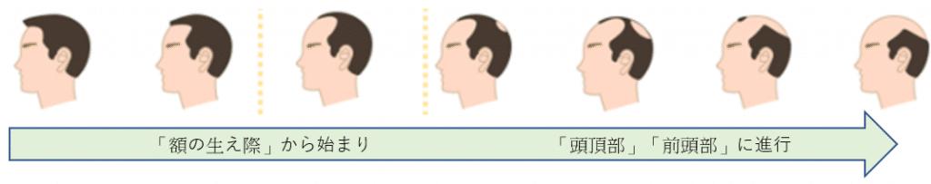 「額の生え際」から始まり「頭頂部」「前頭部」