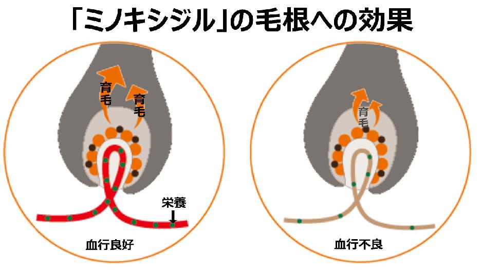 ミノキシジルの毛根への効果